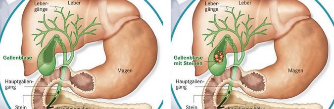 Gallenblase - Merkblatt