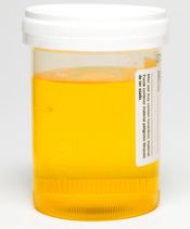 Gelber Urin Baby