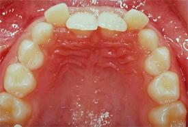 behandlung kopfbiss 1 zahn